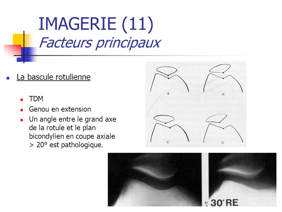 IMAGERIE (11) Facteurs principaux
