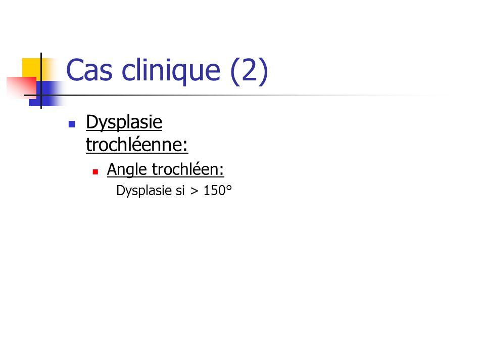 Cas clinique (2) Dysplasie trochléenne: Angle trochléen: