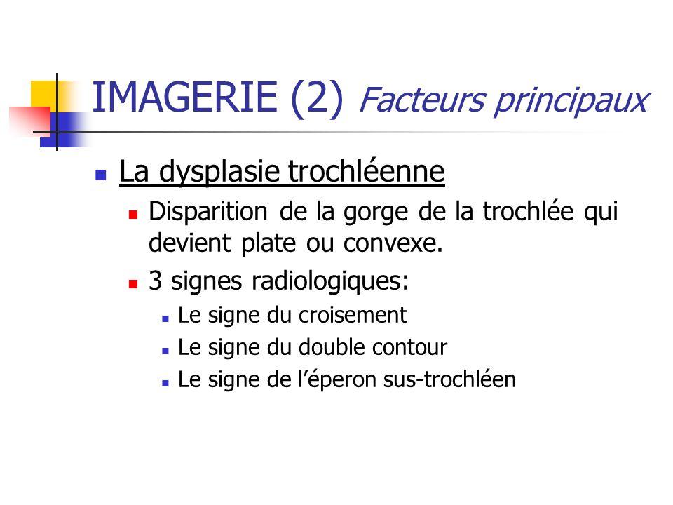 IMAGERIE (2) Facteurs principaux