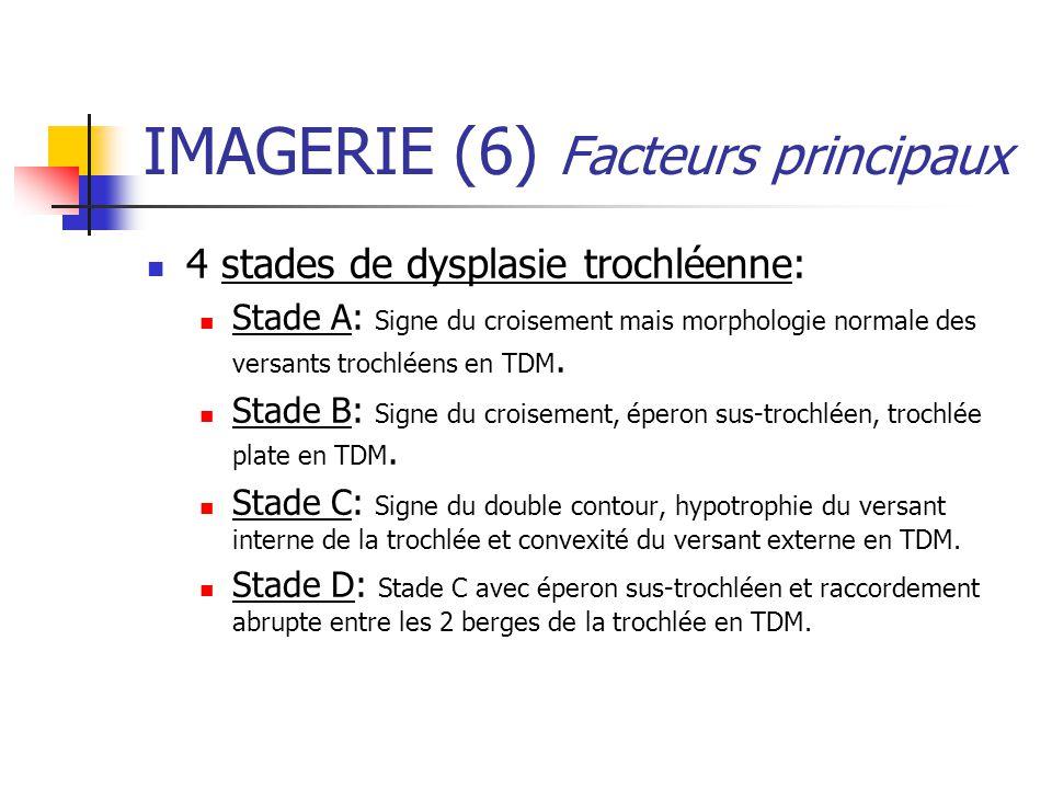 IMAGERIE (6) Facteurs principaux