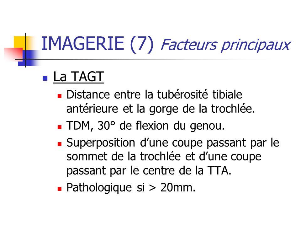 IMAGERIE (7) Facteurs principaux