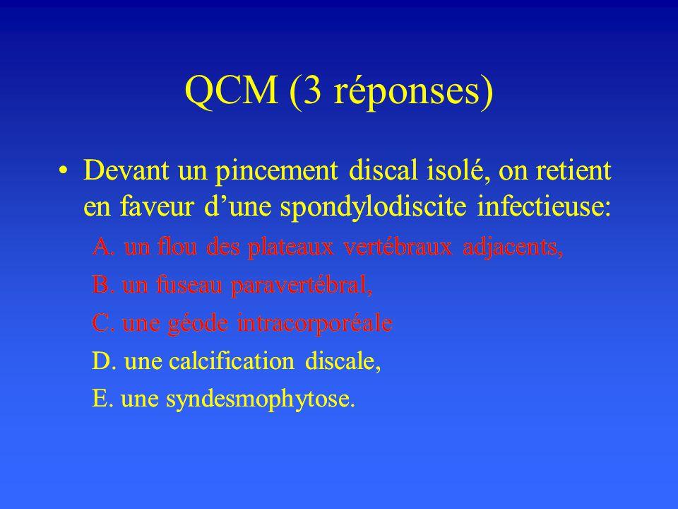 QCM (3 réponses) Devant un pincement discal isolé, on retient en faveur d'une spondylodiscite infectieuse: