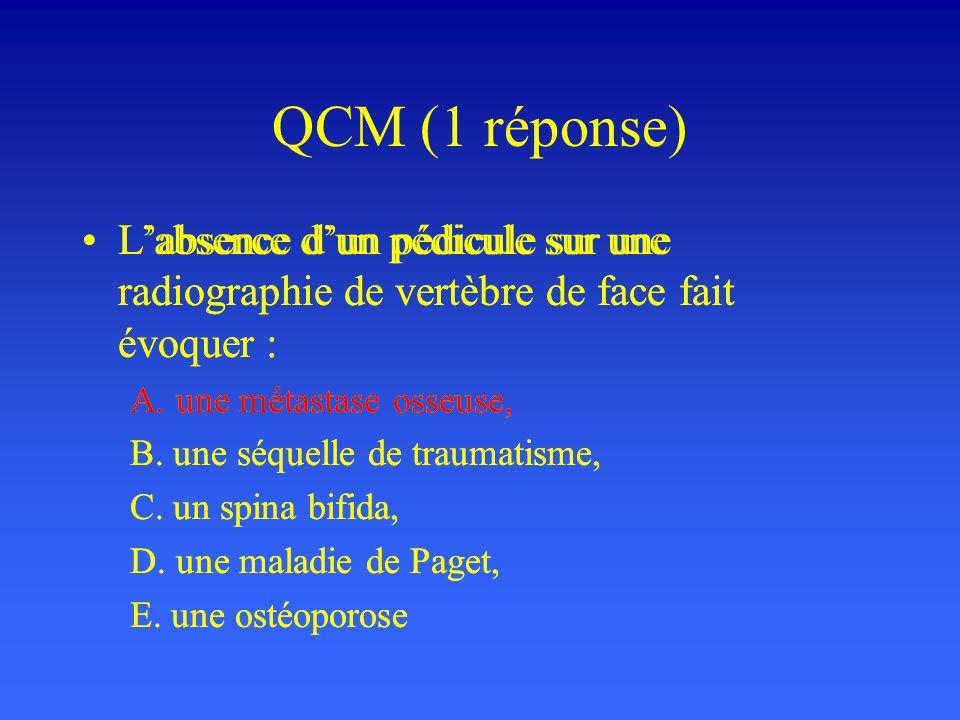 QCM (1 réponse) L'absence d'un pédicule sur une radiographie de vertèbre de face fait évoquer : A. une métastase osseuse,