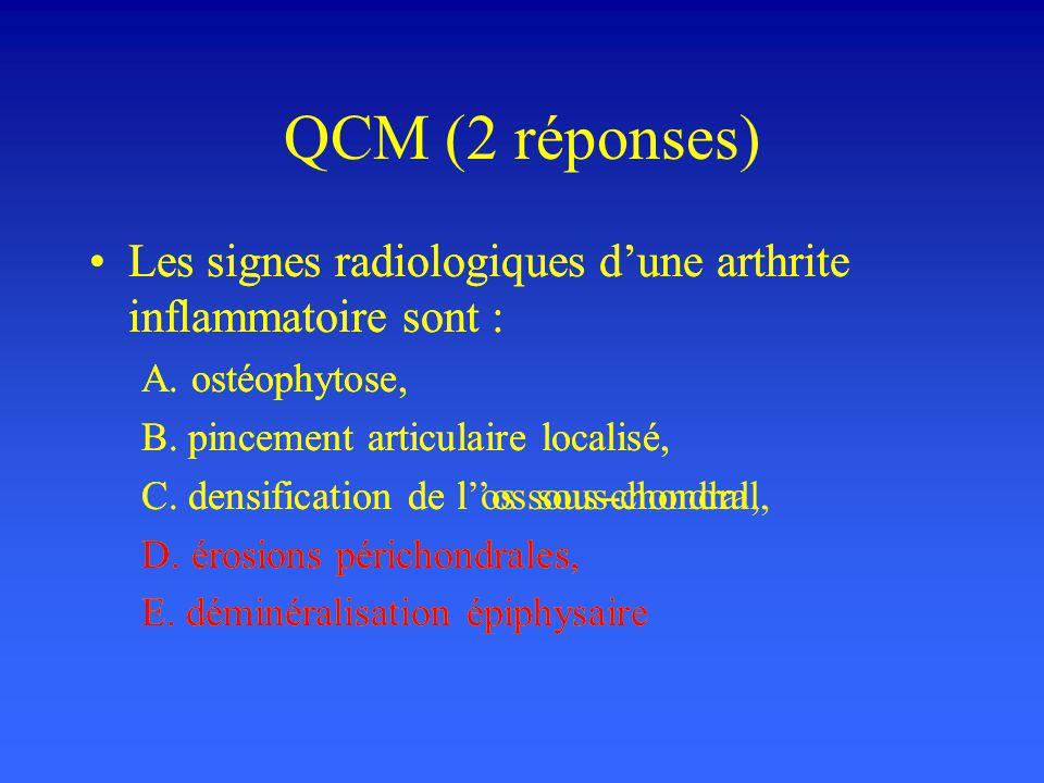 QCM (2 réponses) Les signes radiologiques d'une arthrite inflammatoire sont : A. ostéophytose, B. pincement articulaire localisé,