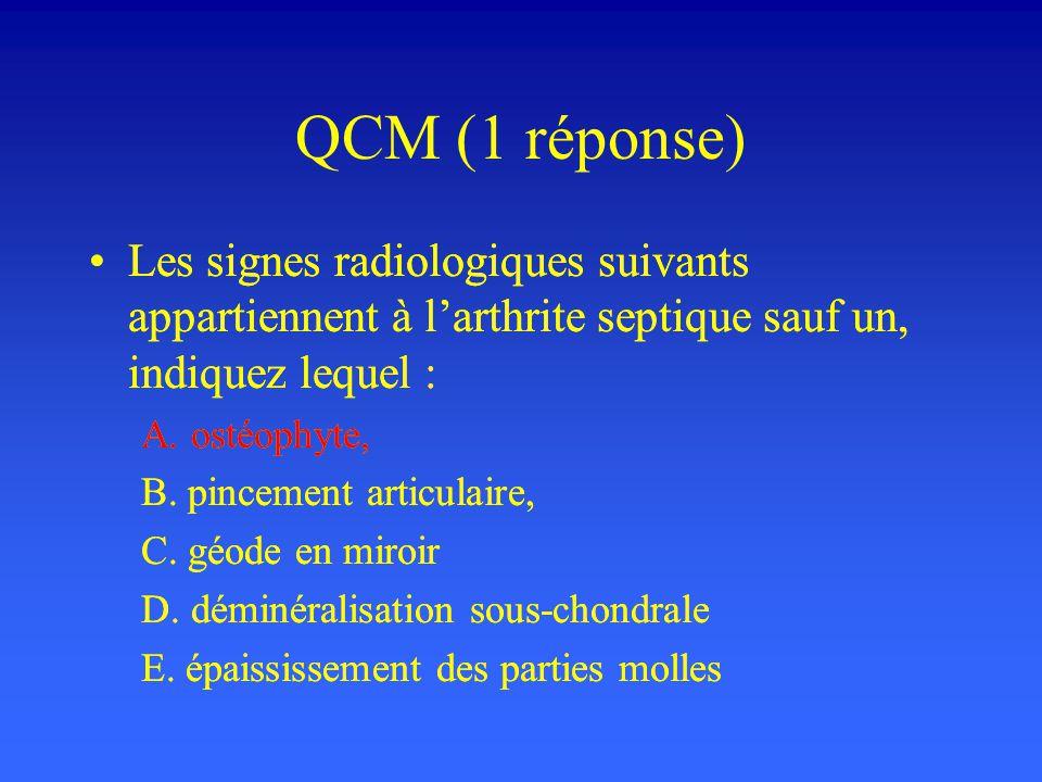 QCM (1 réponse) Les signes radiologiques suivants appartiennent à l'arthrite septique sauf un, indiquez lequel :