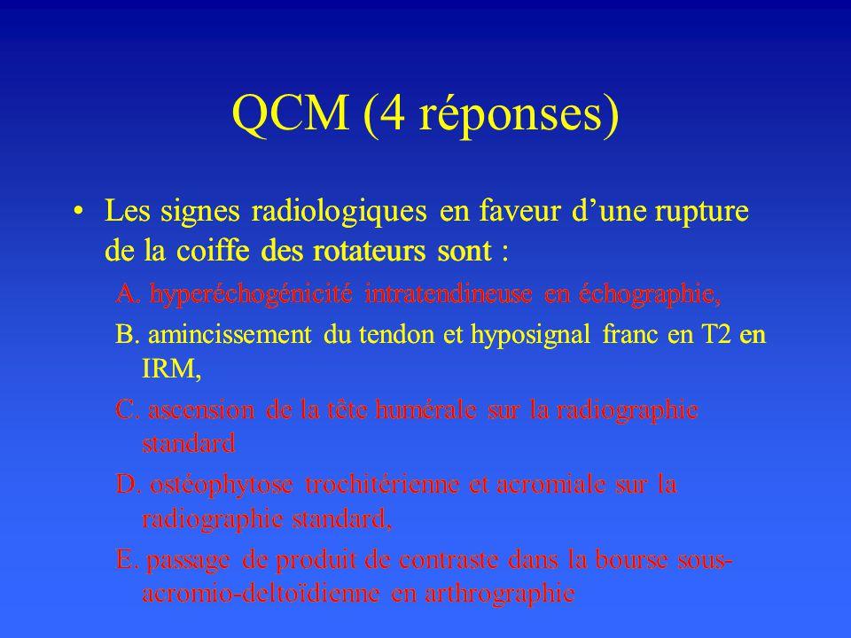 QCM (4 réponses) Les signes radiologiques en faveur d'une rupture de la coiffe des rotateurs sont :