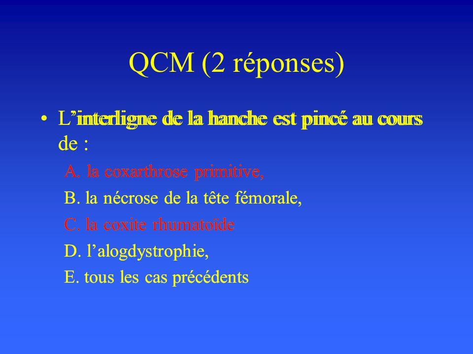 QCM (2 réponses) L'interligne de la hanche est pincé au cours de :