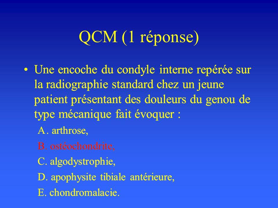 QCM (1 réponse)