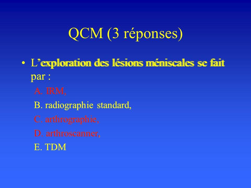 QCM (3 réponses) L'exploration des lésions méniscales se fait par :