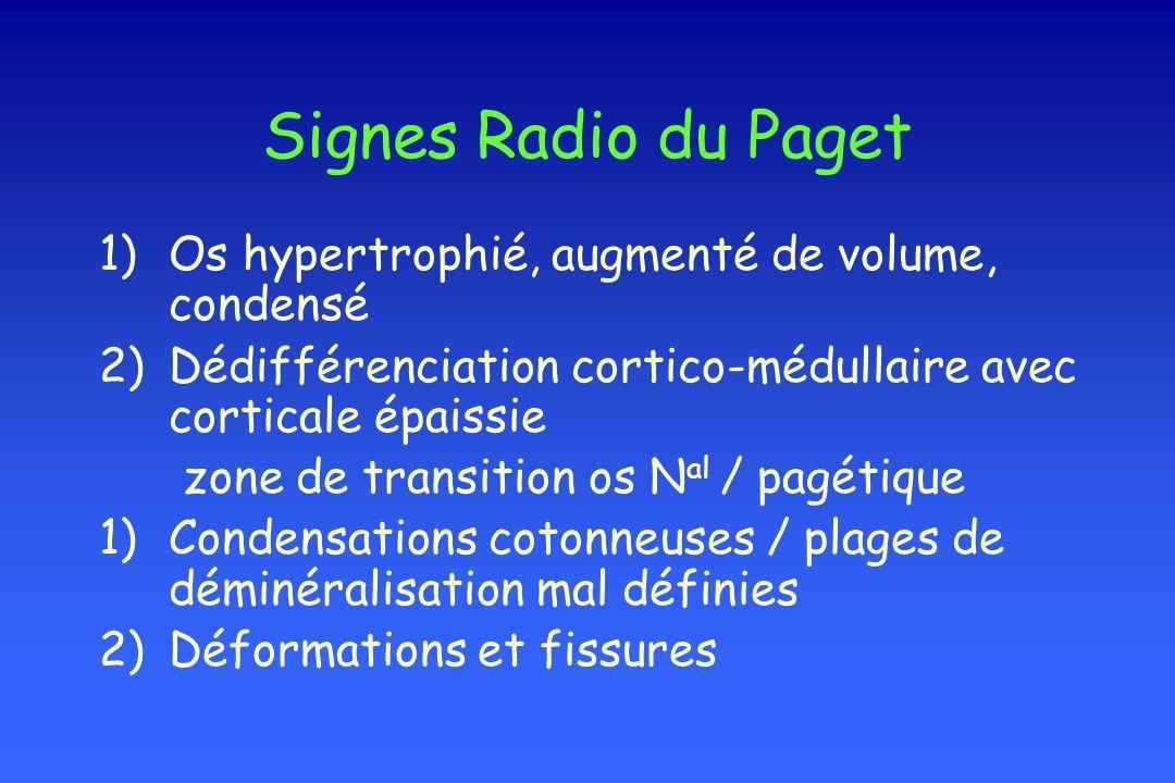 Signes Radio du Paget Os hypertrophié, augmenté de volume, condensé