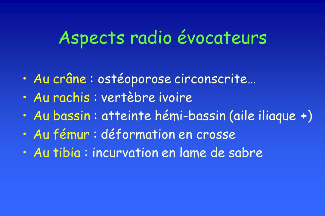 Aspects radio évocateurs