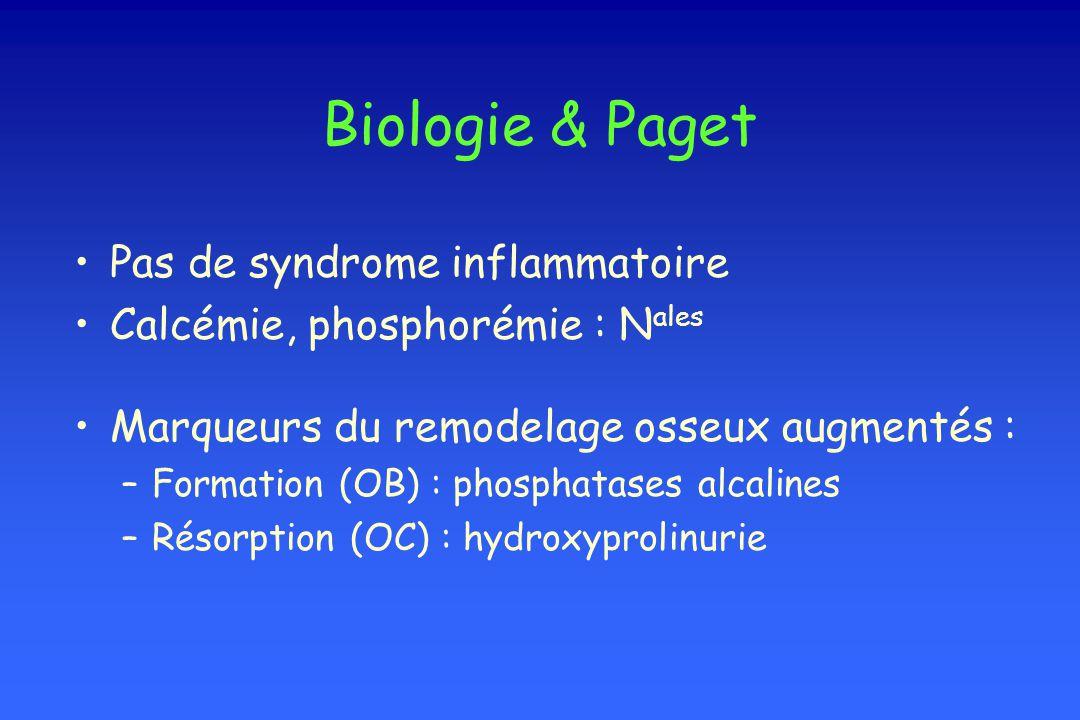 Biologie & Paget Pas de syndrome inflammatoire