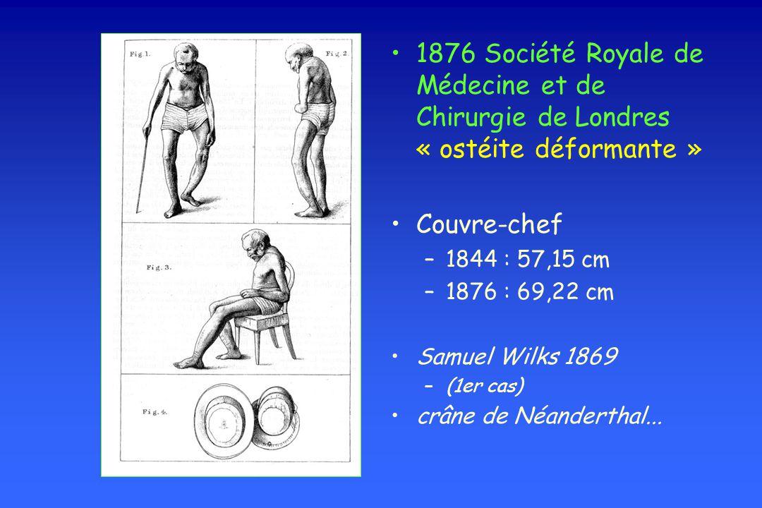 1876 Société Royale de Médecine et de Chirurgie de Londres « ostéite déformante »