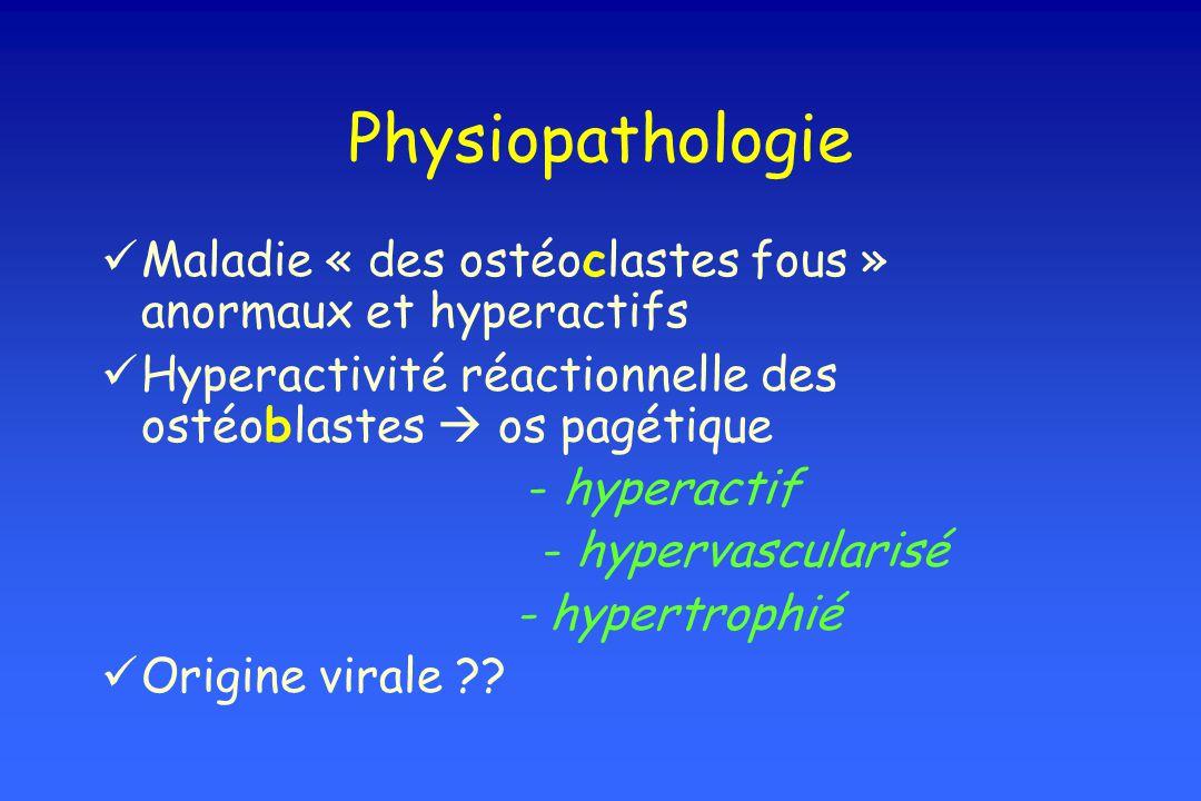 Physiopathologie Maladie « des ostéoclastes fous » anormaux et hyperactifs. Hyperactivité réactionnelle des ostéoblastes  os pagétique.