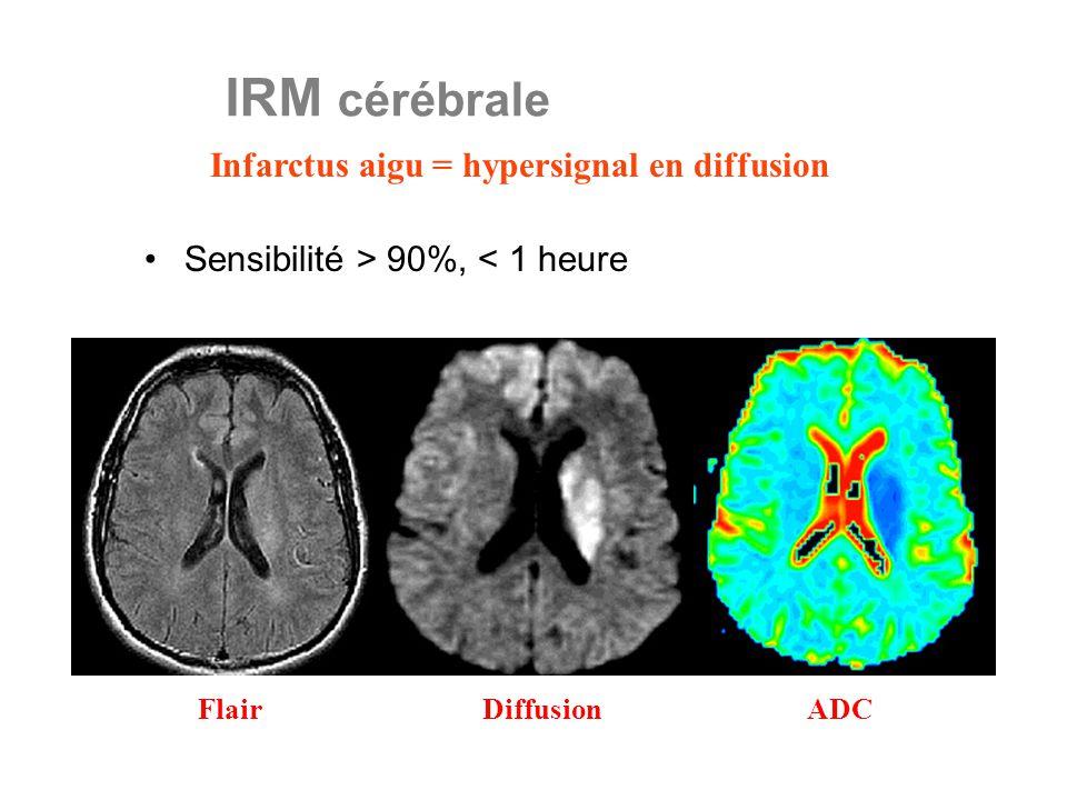 Infarctus aigu = hypersignal en diffusion