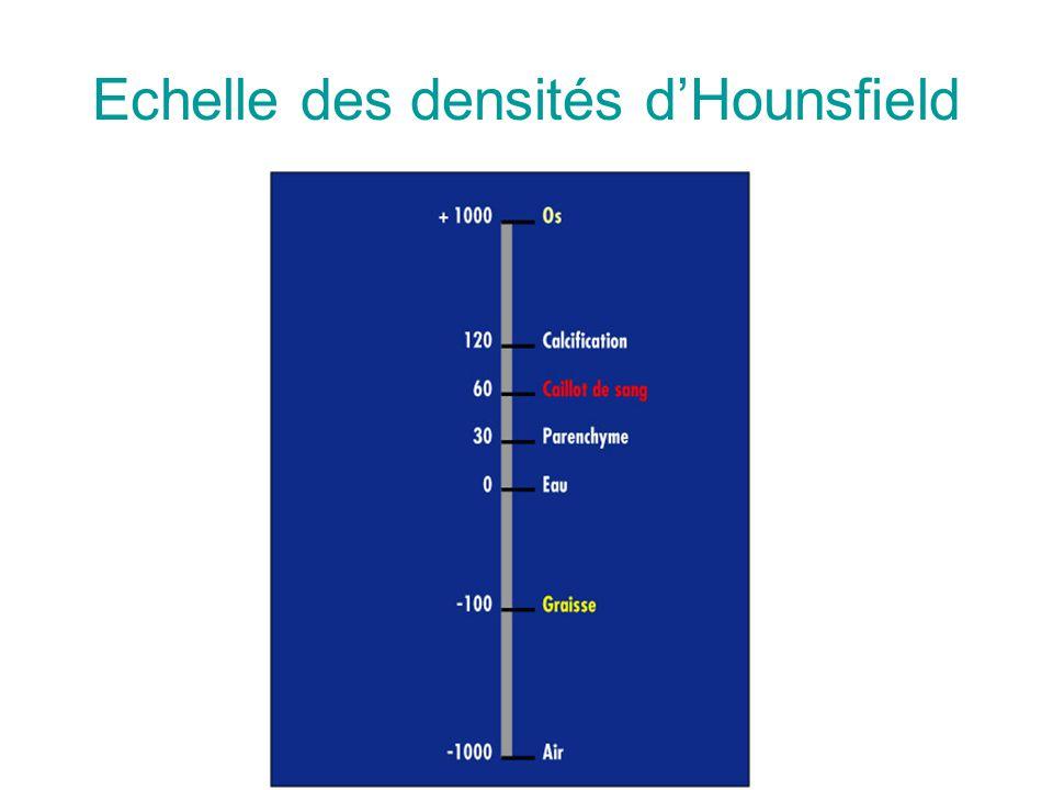 Echelle des densités d'Hounsfield