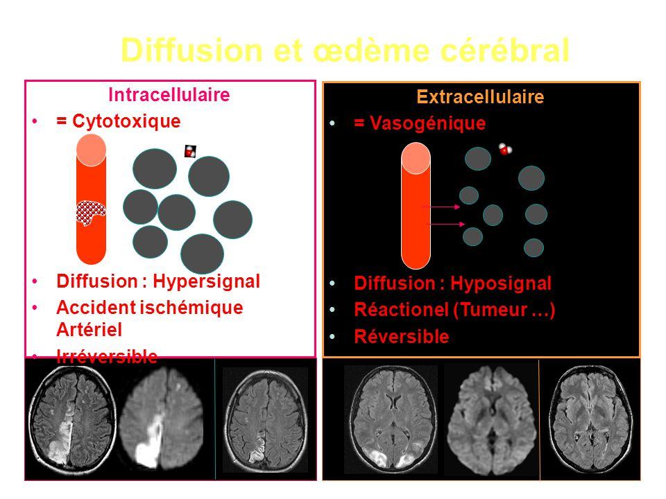 Diffusion et œdème cérébral