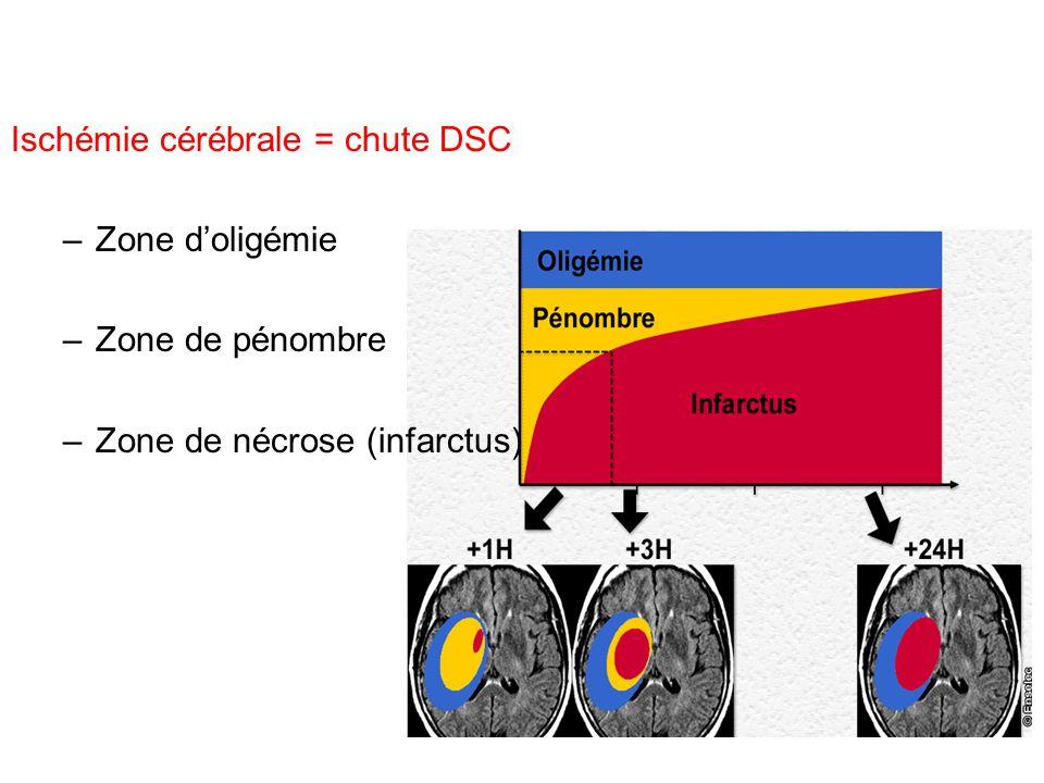 Ischémie cérébrale = chute DSC