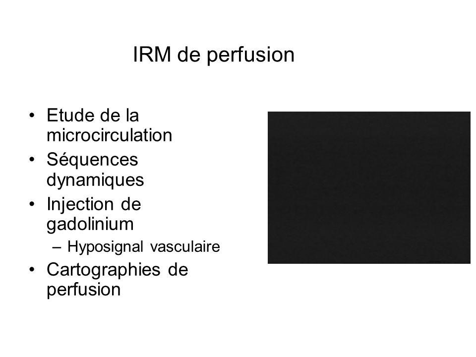 IRM de perfusion Etude de la microcirculation Séquences dynamiques