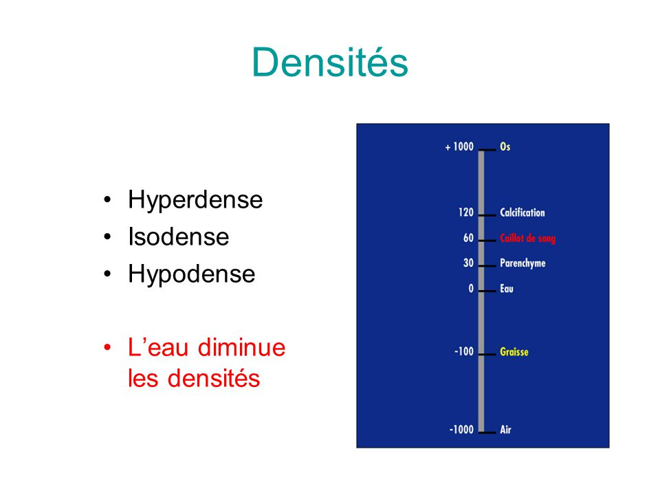Densités Hyperdense Isodense Hypodense L'eau diminue les densités