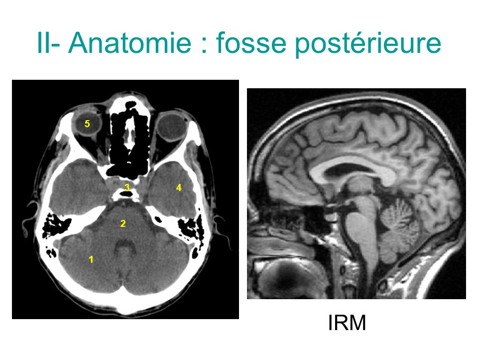 II- Anatomie : fosse postérieure