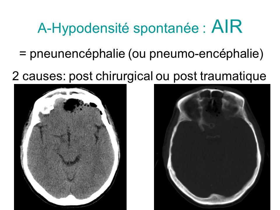 A-Hypodensité spontanée : AIR