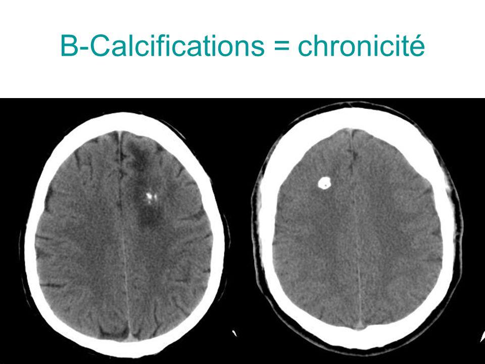 B-Calcifications = chronicité