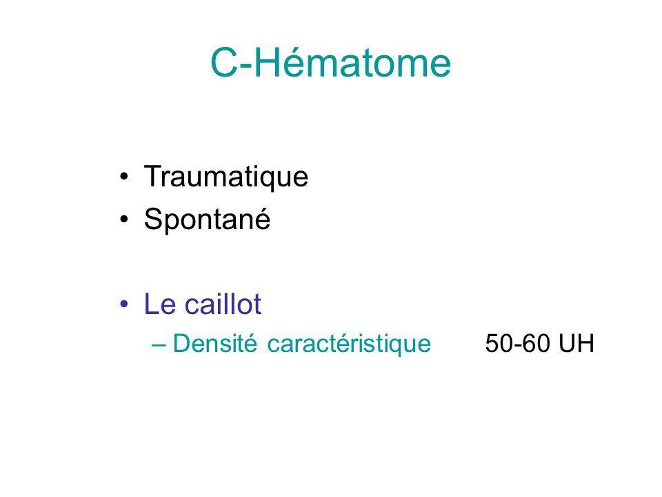 C-Hématome Traumatique Spontané Le caillot