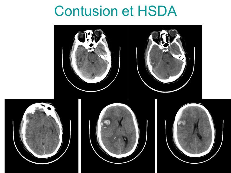 Contusion et HSDA