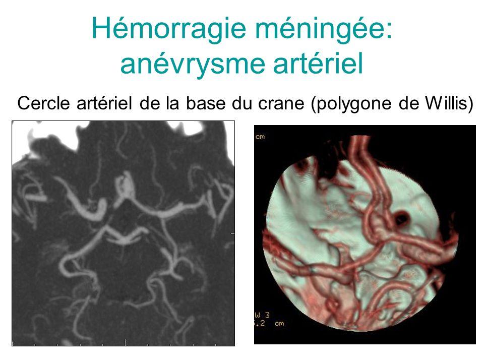 Hémorragie méningée: anévrysme artériel