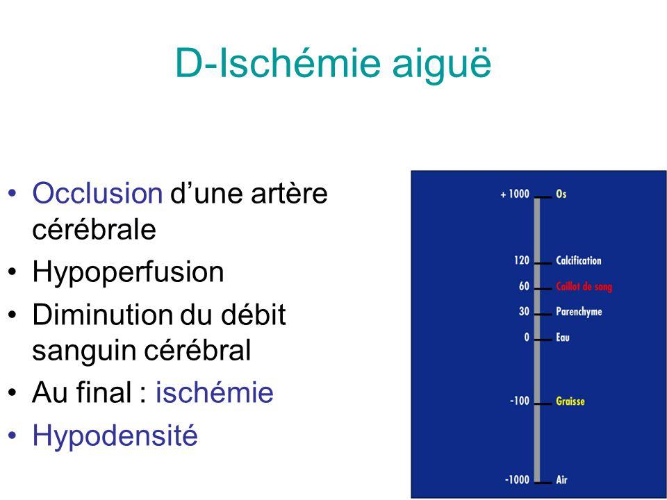 D-Ischémie aiguë Occlusion d'une artère cérébrale Hypoperfusion