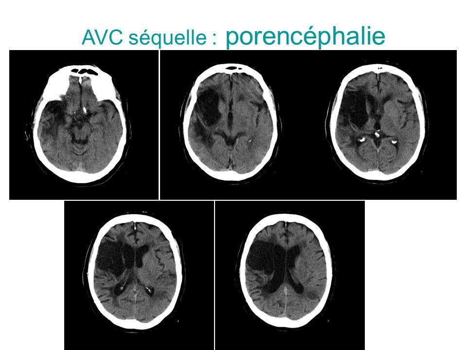 AVC séquelle : porencéphalie