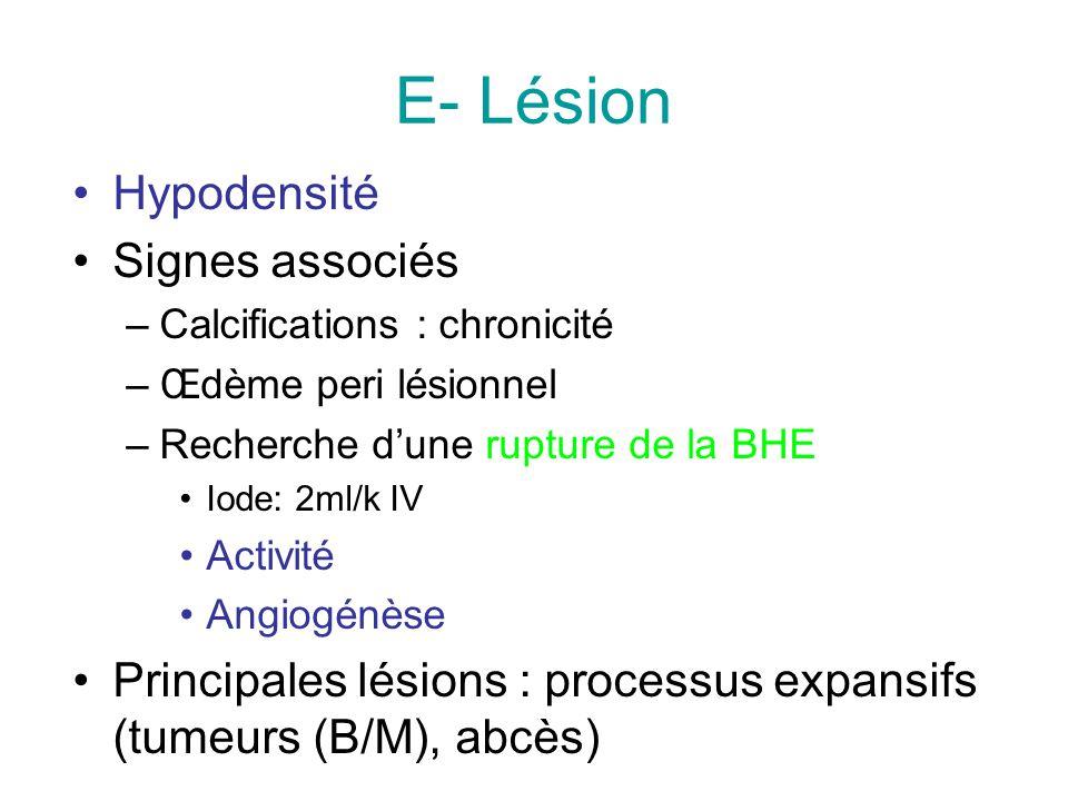 E- Lésion Hypodensité Signes associés