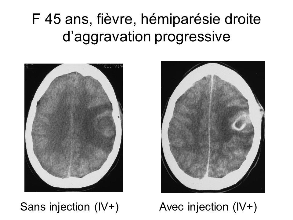 F 45 ans, fièvre, hémiparésie droite d'aggravation progressive