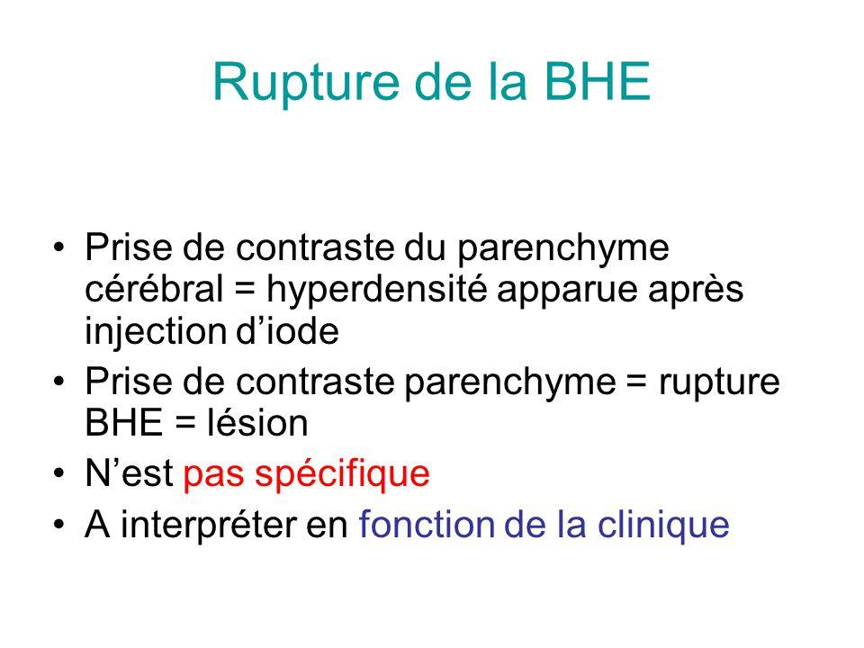 Rupture de la BHE Prise de contraste du parenchyme cérébral = hyperdensité apparue après injection d'iode.