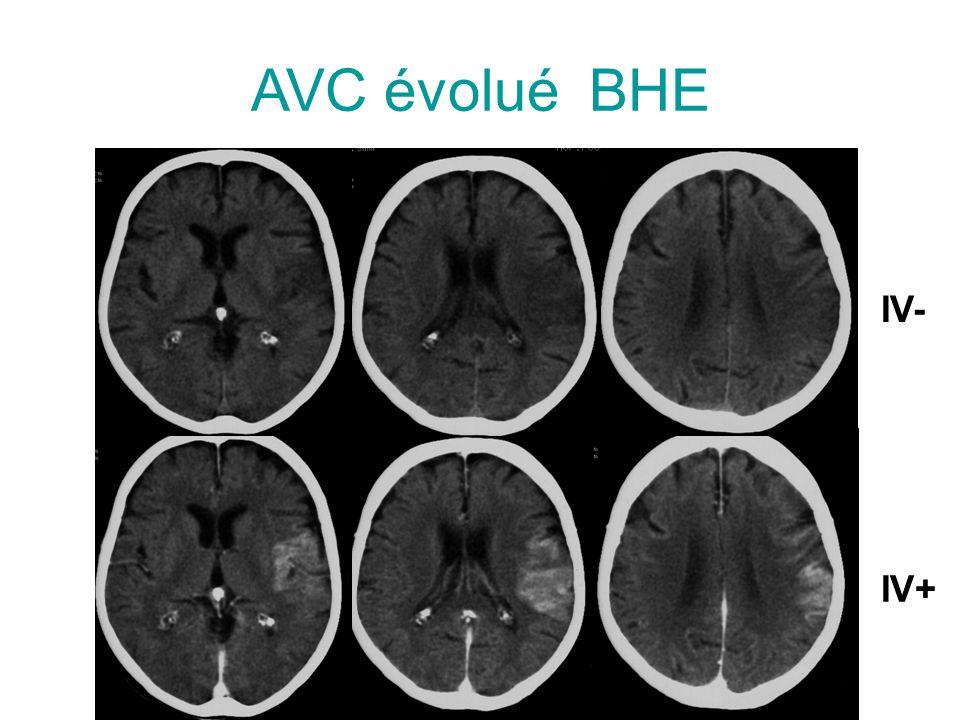 AVC évolué BHE IV- IV+