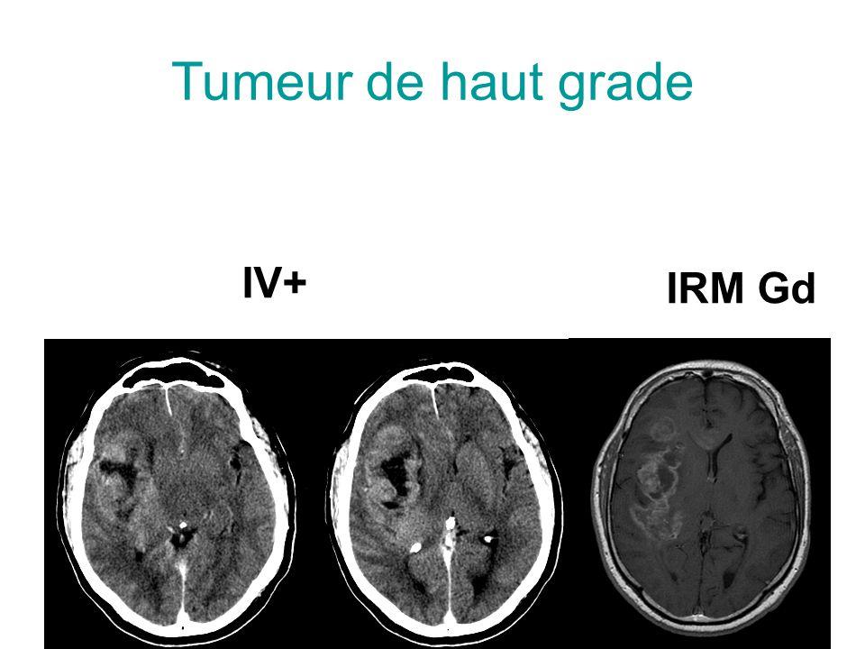 Tumeur de haut grade IV+ IRM Gd