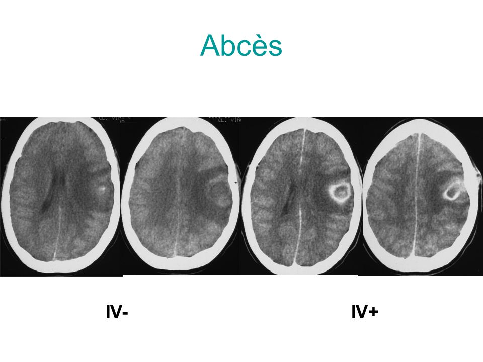 Abcès IV- IV+