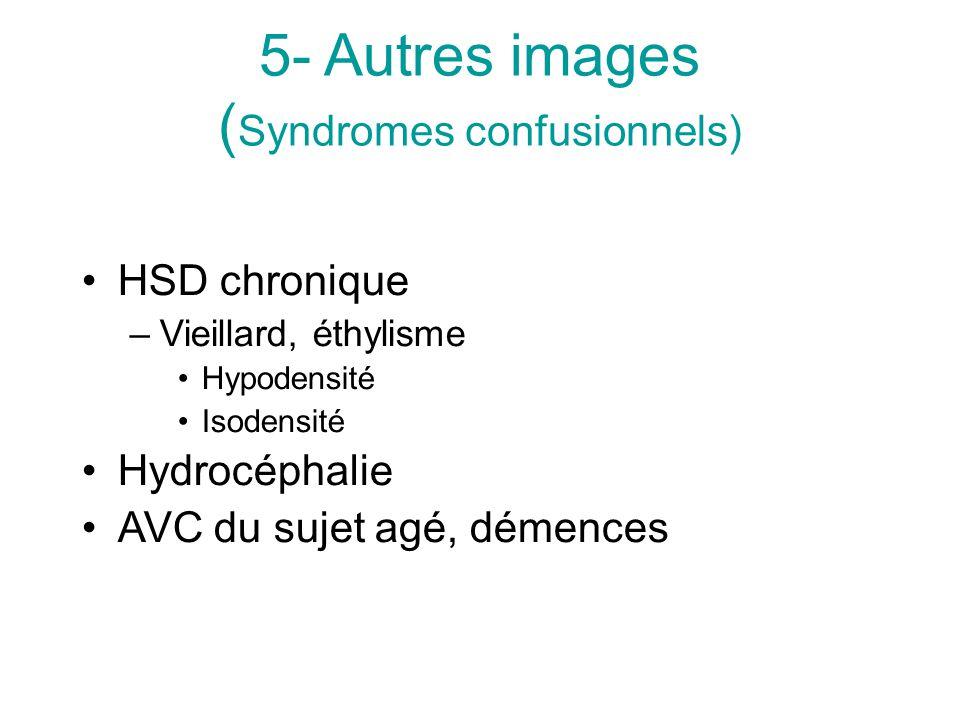 5- Autres images (Syndromes confusionnels)