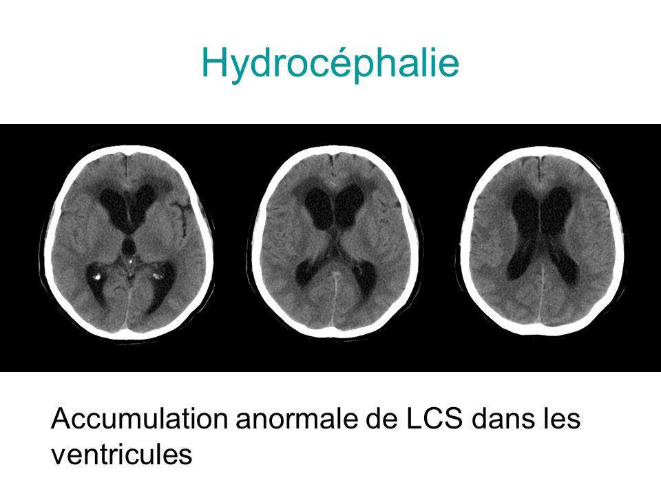 Hydrocéphalie Accumulation anormale de LCS dans les ventricules