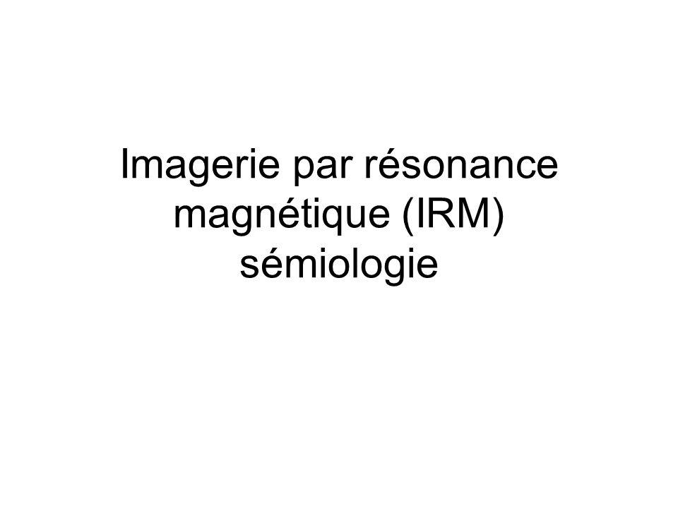 Imagerie par résonance magnétique (IRM) sémiologie