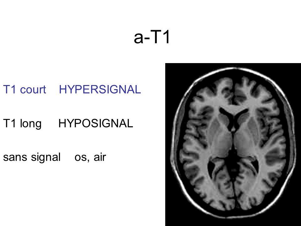 a-T1 T1 court HYPERSIGNAL T1 long HYPOSIGNAL sans signal os, air