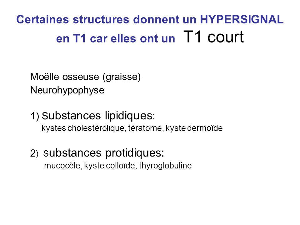 Certaines structures donnent un HYPERSIGNAL en T1 car elles ont un T1 court