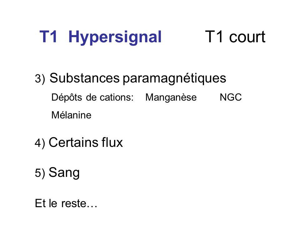 T1 Hypersignal T1 court Dépôts de cations: Manganèse NGC Mélanine