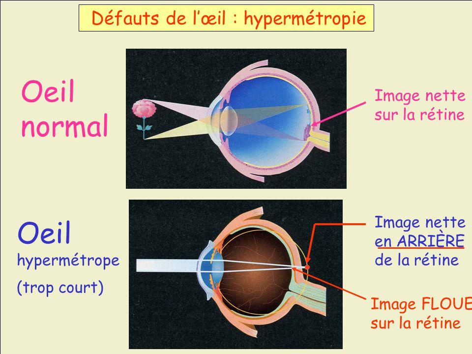 Oeil normal Oeil Défauts de l'œil : hypermétropie Image nette