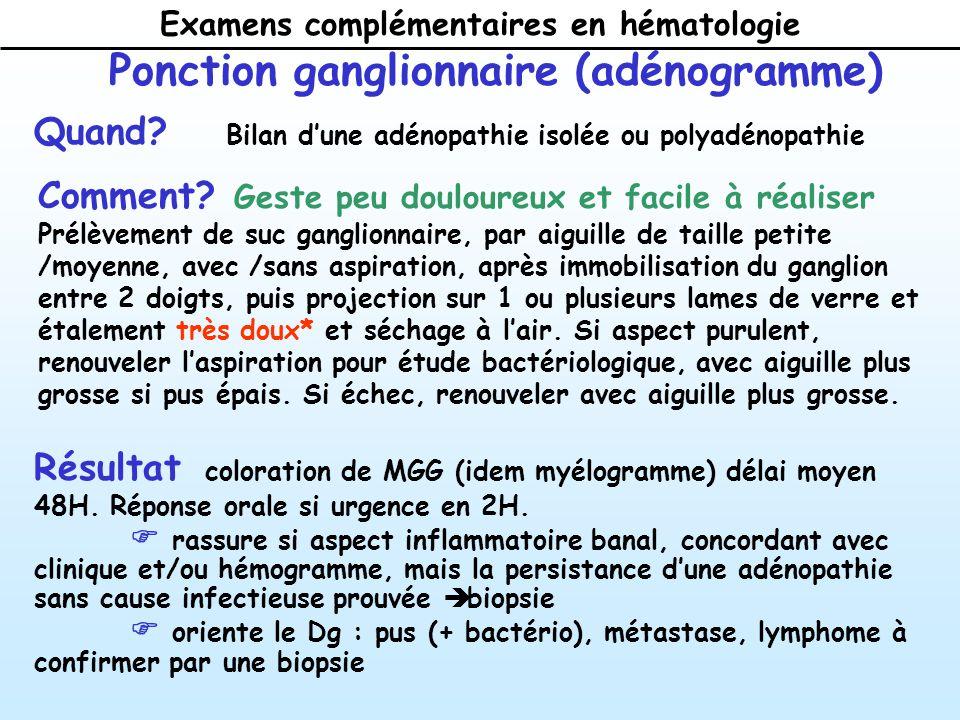 Ponction ganglionnaire (adénogramme)