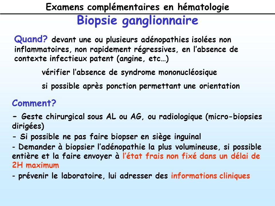 Examens complémentaires en hématologie Biopsie ganglionnaire