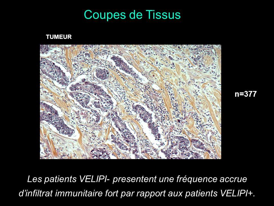 Coupes de Tissus Les patients VELIPI- presentent une fréquence accrue