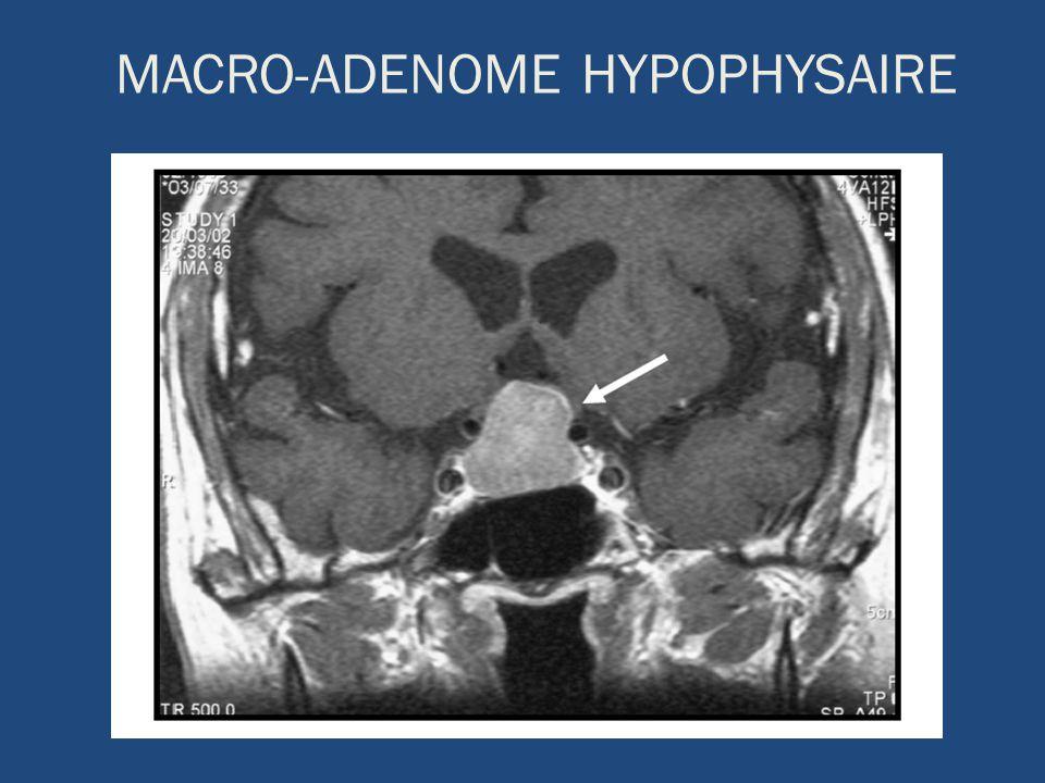 MACRO-ADENOME HYPOPHYSAIRE