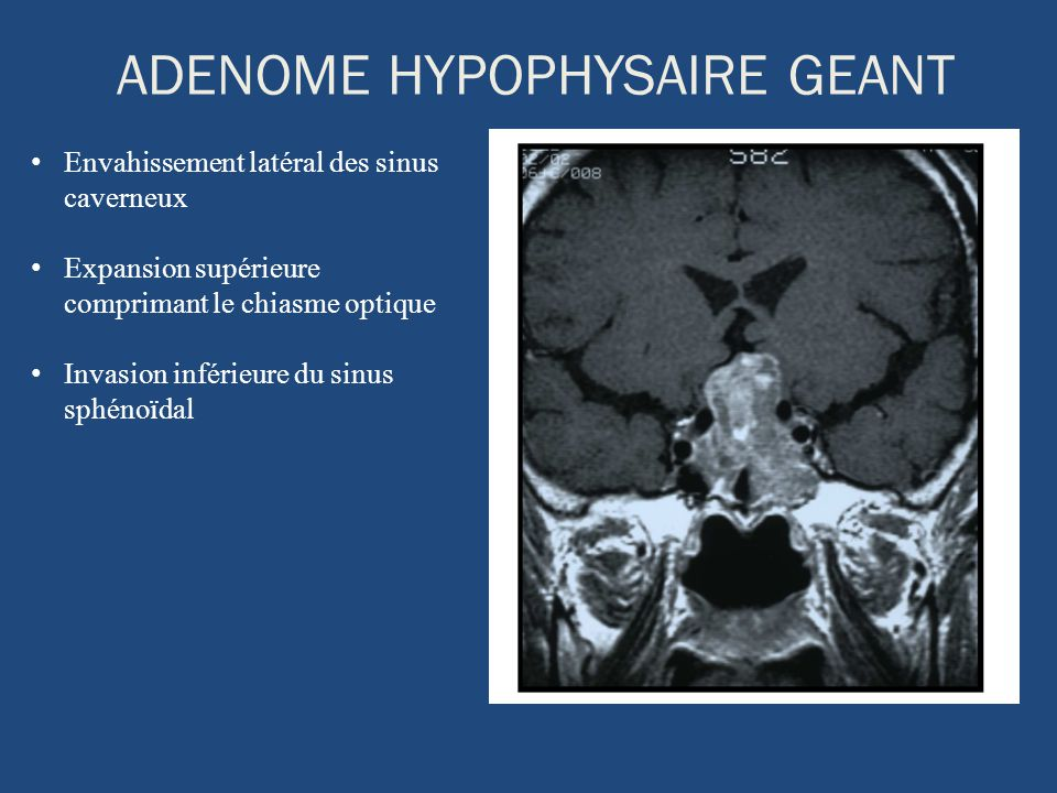 ADENOME HYPOPHYSAIRE GEANT